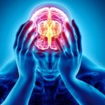 Frontal migraine