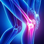 Inflammed knee pain