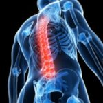 Inflammed spine pain
